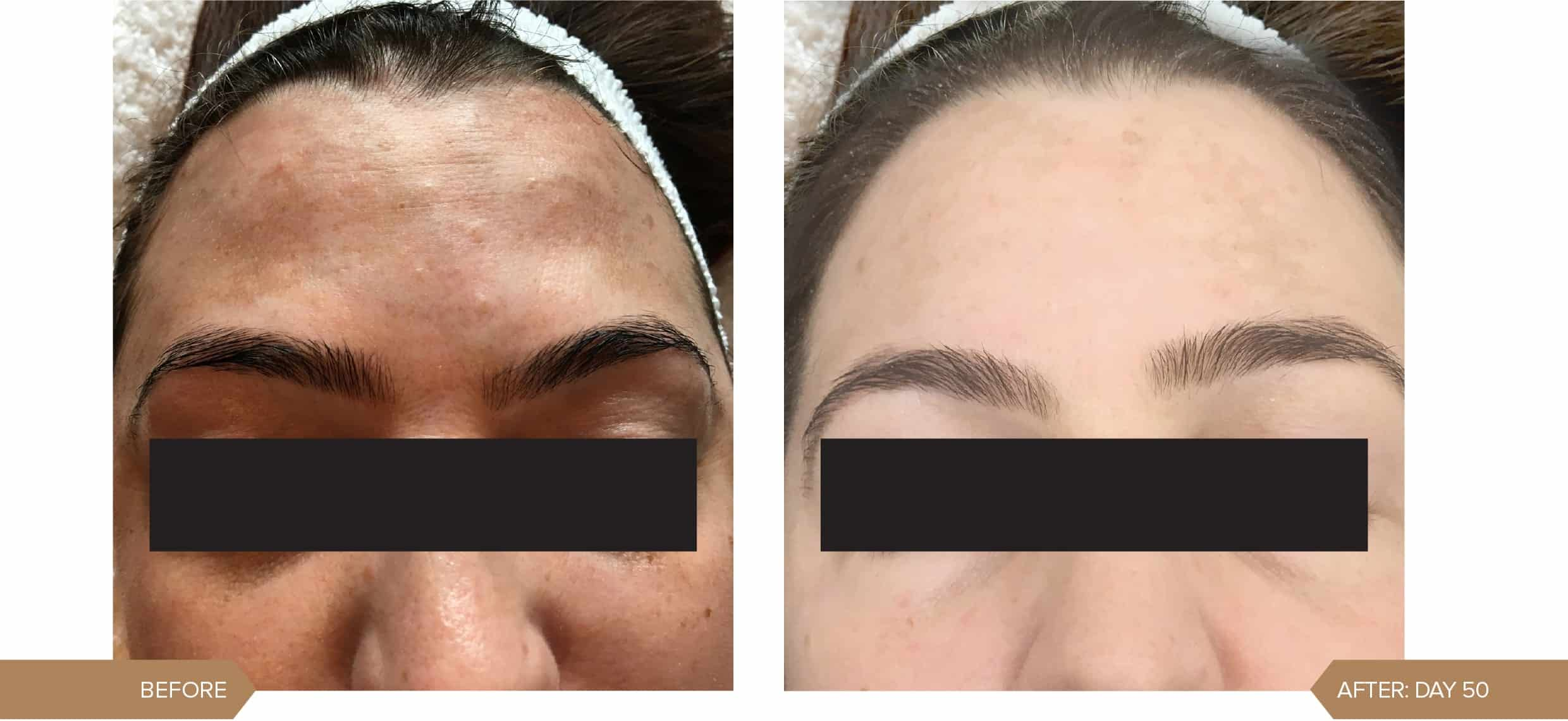 Ageing-&-Pigmentation-before-and-after-alumier-1