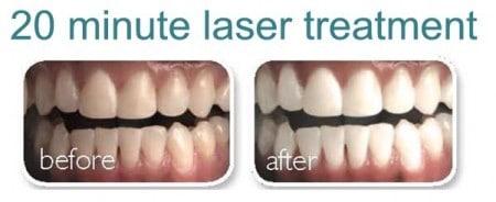 Mega-White-Teeth-Whitening-04