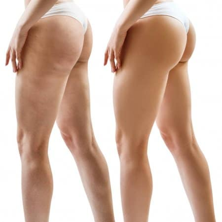 female-buttocks-and-hips-before