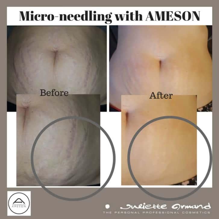 micro-needling-02