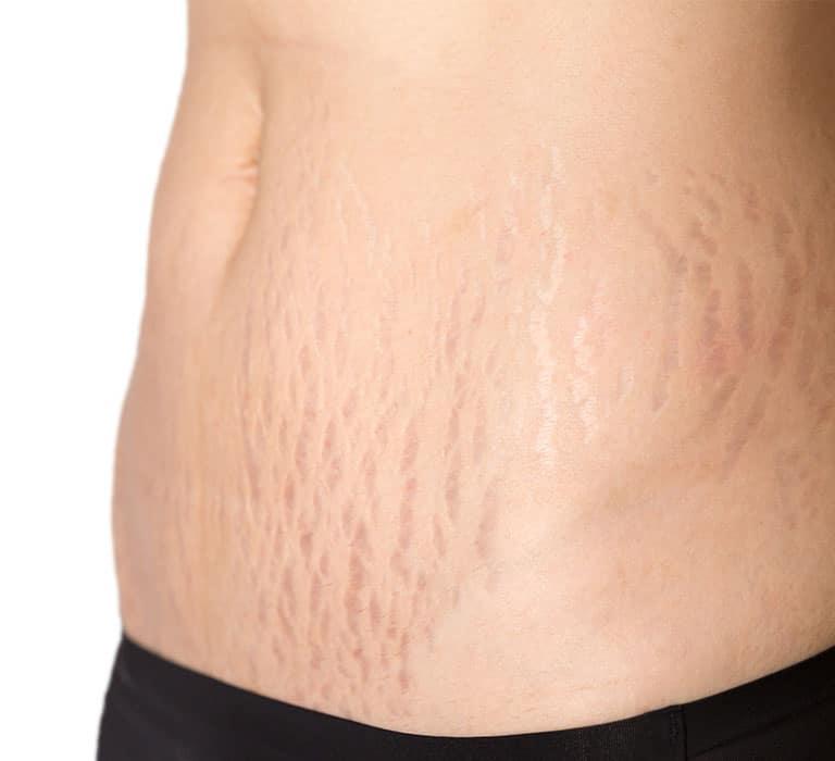 stretch-marks-768x700px